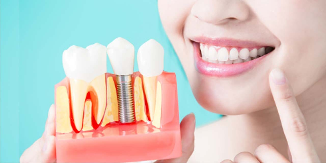 dental-implants-treatment-clinic-gurgaon